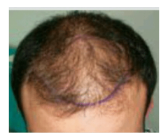 Wat kost een haartransplantatie?